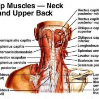 Why Are Neck Pain and Headaches So Common?